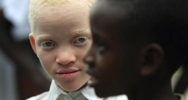 Bill to protect albinos passes second reading