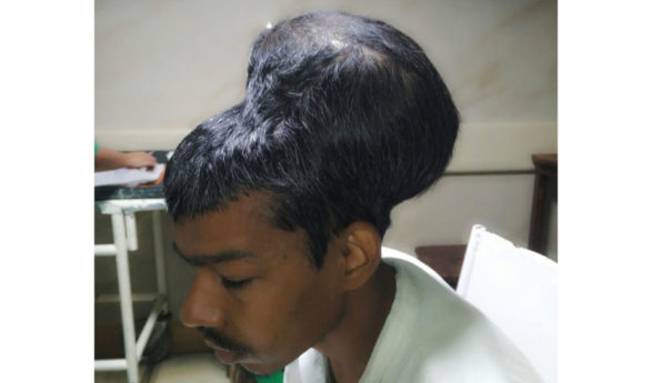 Indian surgeons remove 'heaviest recorded' brain tumour