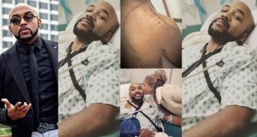 Banky W speaks on his skin cancer surgery